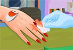 Manicure po operacji